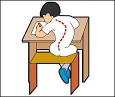 Здоровье школьника: как избежать сколиоза